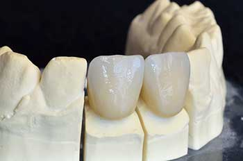 Dental Crowns in Toms River