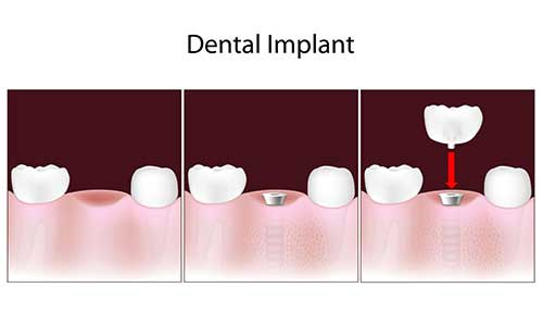 Implant Dentist in Toms River