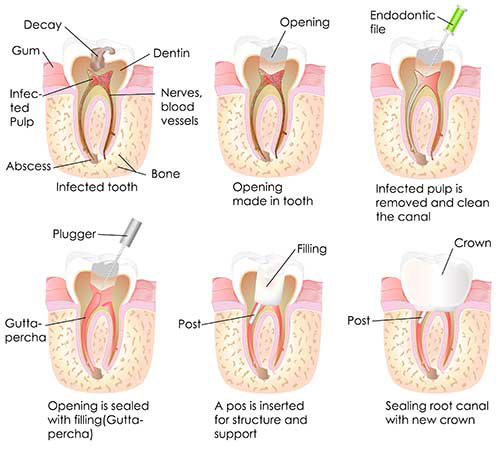Toms River Root Canal